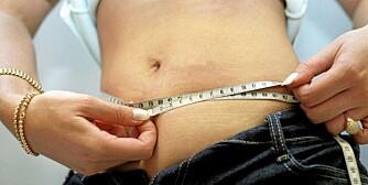 INGEN OPERASJON: Du trenger ikke å legge deg under kniven for å minske magesekken.