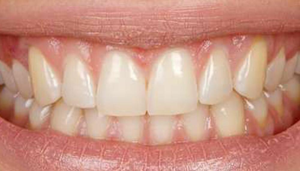 GOD HYGIENE: Puss tennene to ganger om dagen, og følg de generelle hygienerådene for å opprettholde friske tenner, anbefaler tannhelseekspert.