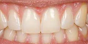 GOD HYGIENE: Puss tennene to ganger om dagen, og følg de generelle hygienerådene for å opprettholde friske tenner, anbefaler tannhelseekspert. FOTO: Petter Berg