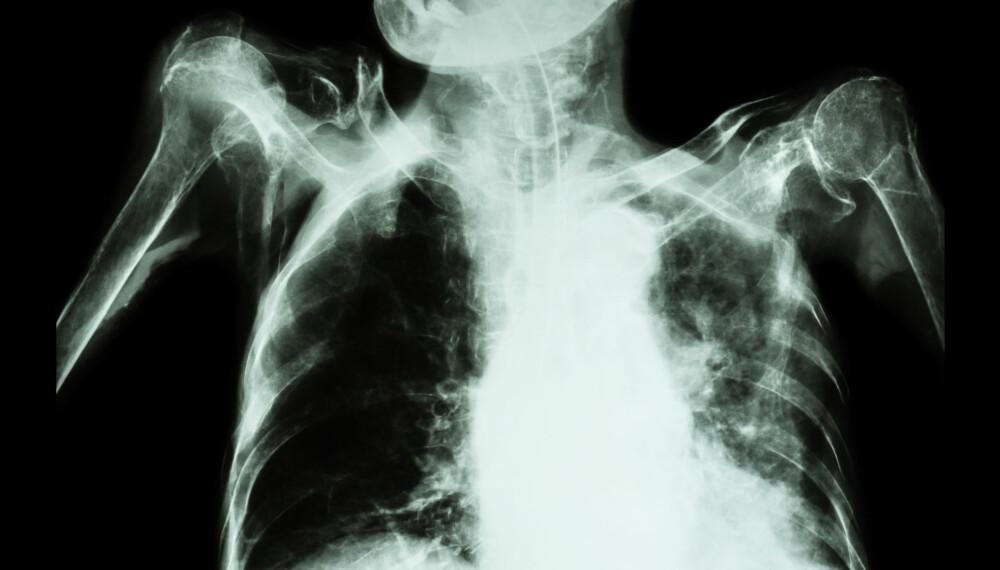 TUBERKULOSE: Den gamle infeksjonssykdommen er fremdeles et helseproblem på verdensbasis. Også i Norge forekommer det mellom 350 og 400 nye tilfeller hvert år.