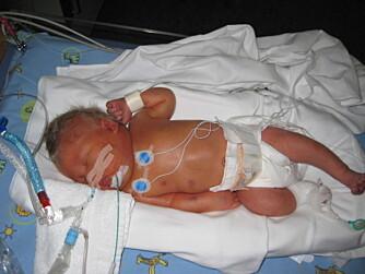 Fødselen var hard også for lille Marcus, som ble født fem uker for tidlig.
