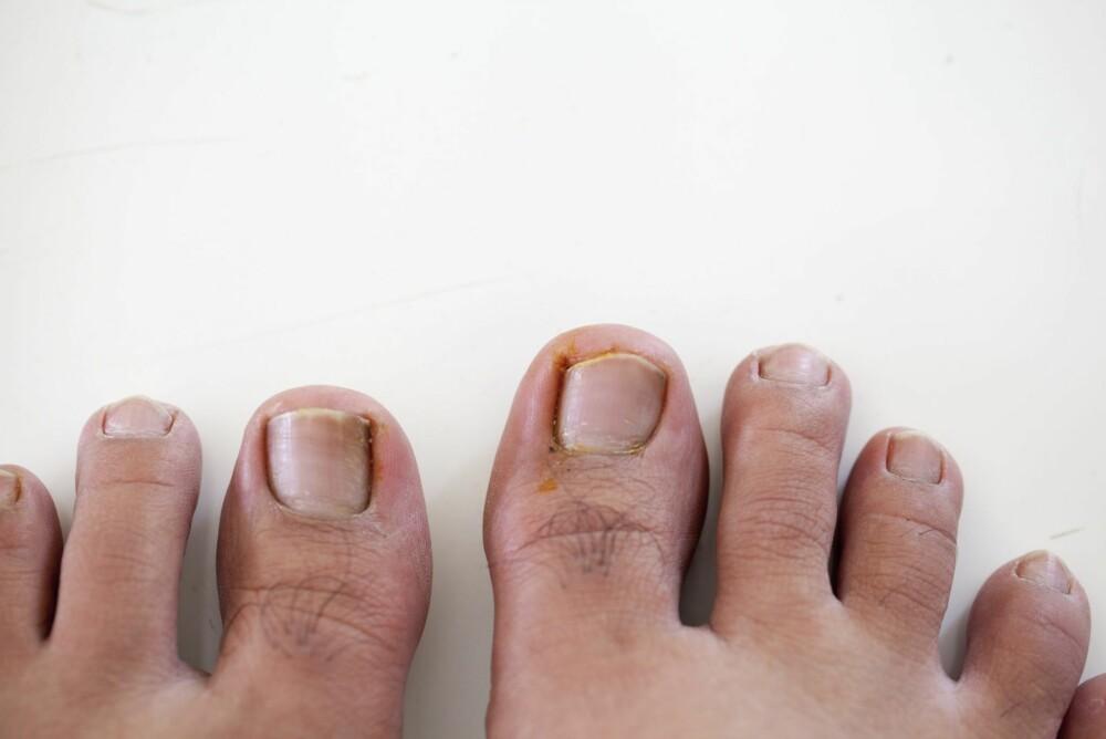 BEHANDLING AV INNGRODD TÅNEGL: Du kan forsøke å behandle inngrodd tånegl selv.