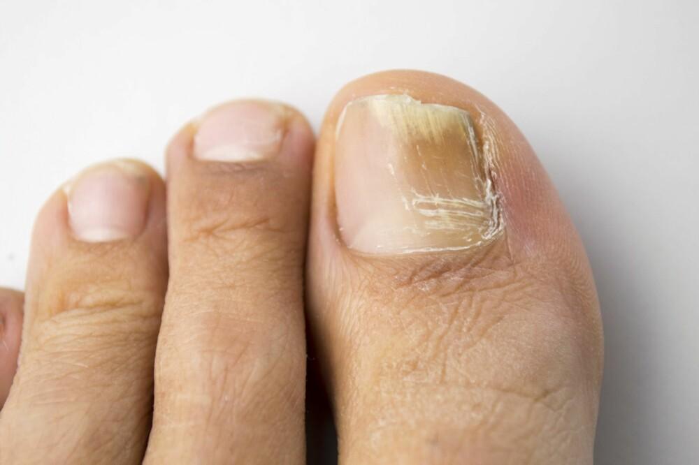 NEGLESOPP: Man kan få behandling dersom neglesopp er bekreftet og symptomene er plagsomme.