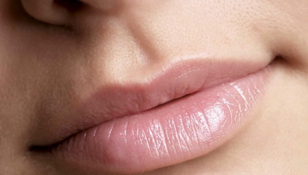 LEPPEPLEIE: Hvis du glemmer å ta vare på leppene, kan resultatet bli tørre og sprukne lepper.