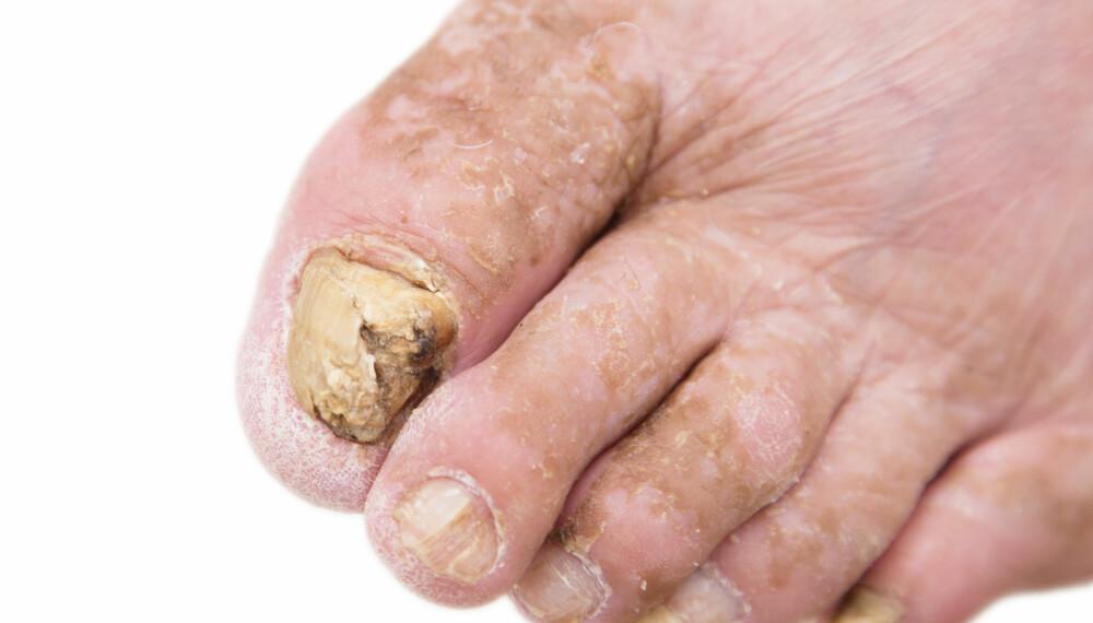 NEGLESOPP: Hvis neglene forandrer seg, kan det hende du har fått neglesopp.