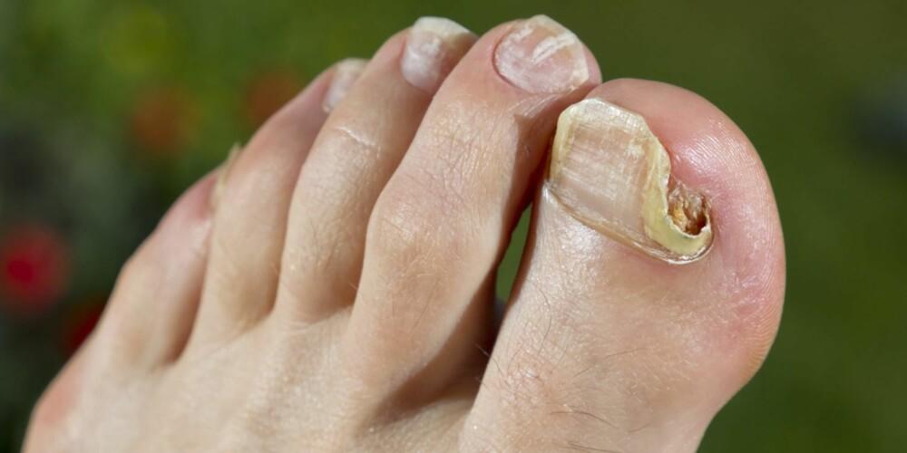 NEGLESOPP: Neglesopp er en soppinfeksjon under neglene. Det fører til at neglene blir misfarget, og de kan bli tykkere, porøse og deformerte.