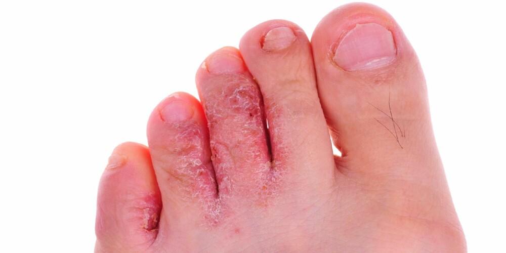 FOTSOPP: Pass på å tørke føttene godt etter dusj og bad. Også mellom tærne.  Særlig menn har en tendens til å glemme dette, og da får man fort fotsopp mellom tærne.