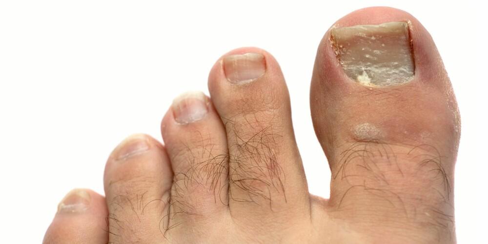 MENN: Neglsopp synes godt på neglen, som hvite flekker, eller at neglen blir tykk og porøs. Det er flest menn som rammes.