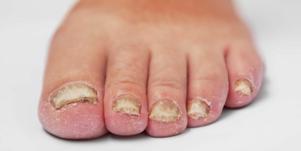 SMERTE: Selv om neglesopp ser ubehagelig ut, gjør det ikke vondt før skoene eventuelt begynner å trykke.
