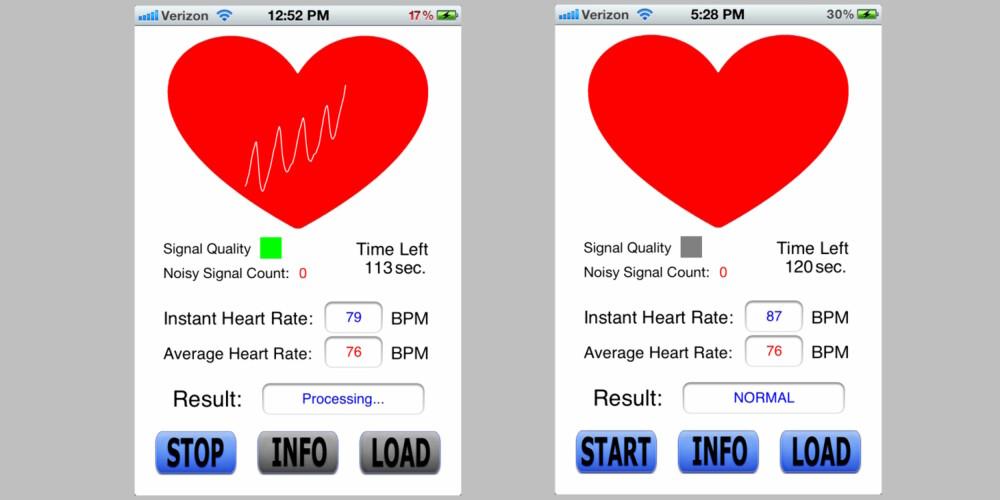 GRENSESNITTET: Slik ser appen ut. Bildet til venstre viser appen mens den scanner hjertefrekvensen din. På bildet til høyre er resultatet ferdig, og i dette tilfellet viser det normal hjertefrekvens.