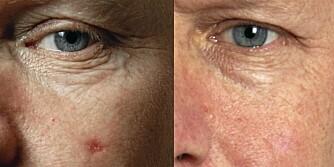 FØR (t.v.): Kinnet til Alexander Berg (53) like før han fikk lysbehandling ETTER: I dag er både hudkreften og arret borte takket være en skånsom og effektiv behandlingsmetode.