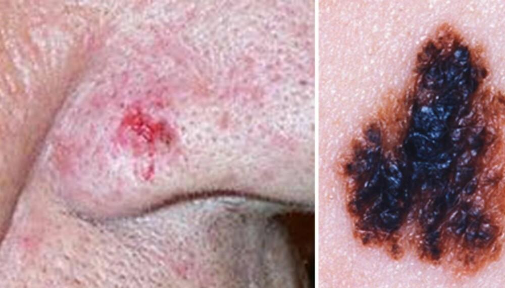 HUDKREFT: Slik kan basalcellekreft (t.v.) se ut. Føflekkreft til høyre.
