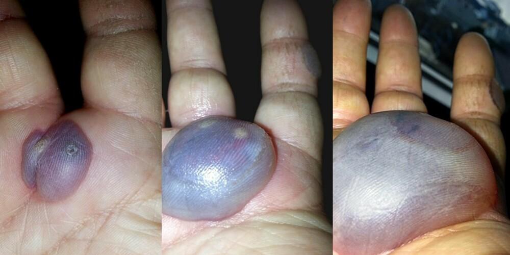 STORE KONSEKVENSER: Tre små vorter ble til store blemmer etter behandling.