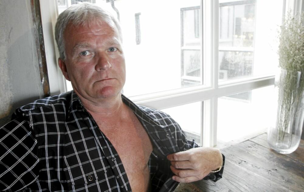 BRYSTKREFT: I dag er det bare et 20 cm langt arr der brystet var, som sladrer om det Rune Martinsen har vært igjennom.
