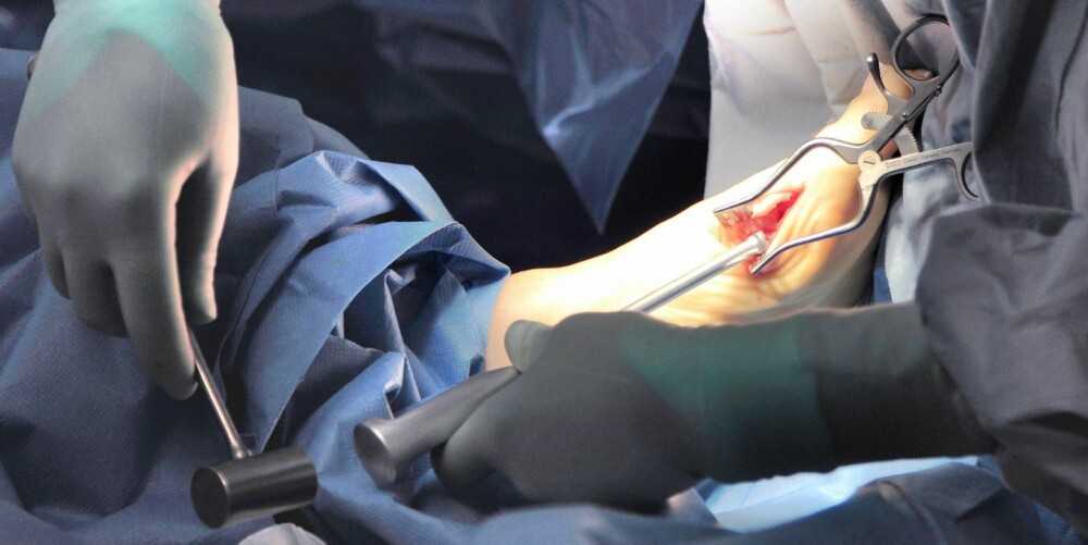 11. Ståltråden dunkes inn i benet der den skal bli værende for å stabilisere i tilhelingstiden.