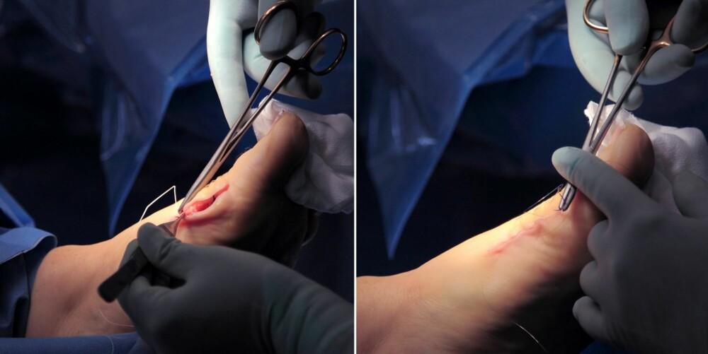 13. Operasjonssnittet sys igjen med små sting fra innsiden. Trådene vil etter hvert gå i oppløsning og bli borte. Arret vil bli minimalt.