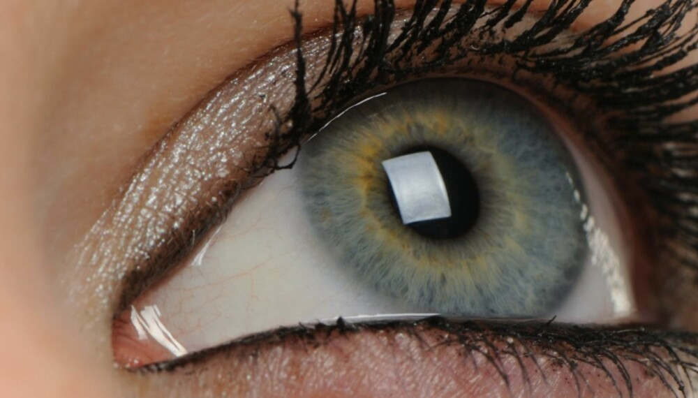 RASKT INNGREP: Operasjonen tar 15 minutter på hvert øye.