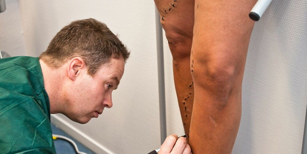 """TUSJ: Kirurg Hayes markerer de overfladiske og godt synlige åreknutene med tusj. Her skal snart lokalbedøvelse og """"heklenåler"""" inn."""