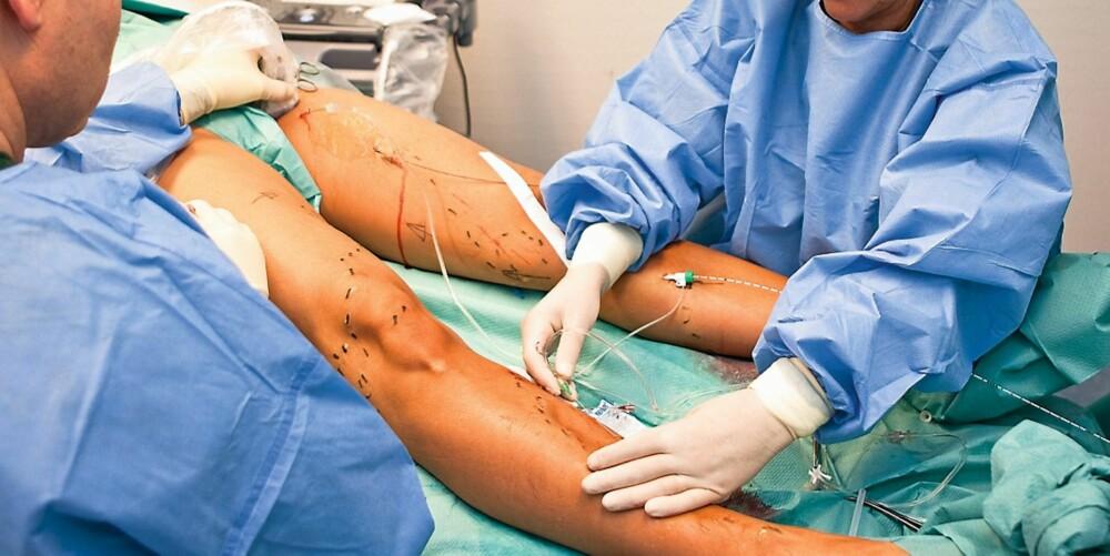"""SVIR LITT: Pasienten kan kjenne at det svir og sprenger litt når """"laserkabelen"""" stikkes inn. Sykepleierne står hele tiden klare med lokalbedøvelse. Med den lange kanylen kan de bedøve store felt av gangen."""