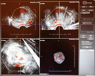HISTOSCANNING: Histoscanning er en sofistikert ultralydprosedyre der man skaper et tredimensjonalt bilde av prostata.