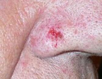 BASALCELLEKREFT: Slik kan basalcellekreft se ut.