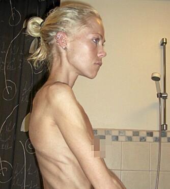 VELDIG SYK: På det sykeste var Ingeborg så tynn at hun kunne dødd. Det siste året har hun klart å doble kroppsvekten sin.