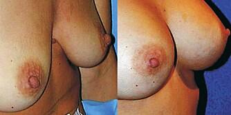 FØR-ETTER: Brystforstørring med gelimplantater.