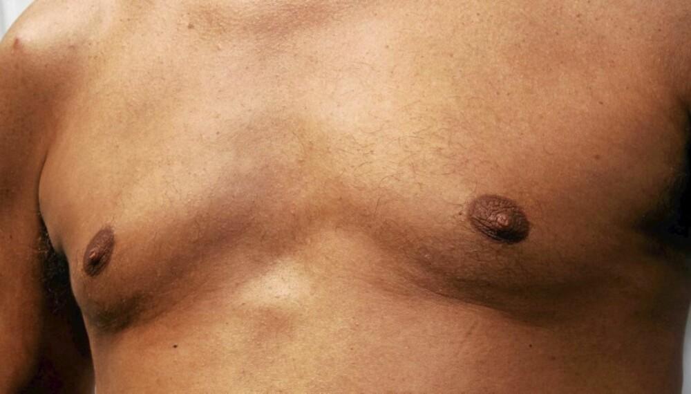 MANNEBRYST: Fettvev i bryster hos menn er sosialt hemmende og noe mange søker kirurgisk hjelp mot.