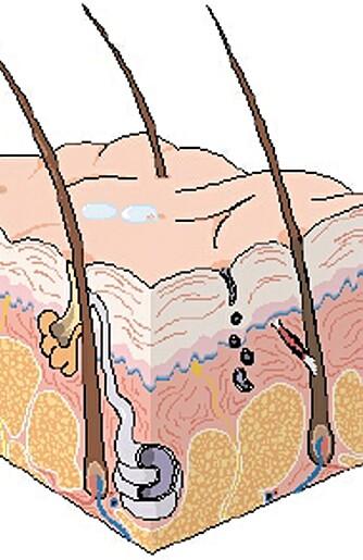 TRE LAG: Huden består av tre lag, kalt overhud (epidermis), lærhud (dermis corium) og underhud (hypodermis subcutis). Ved tredjegradsforbrenning er alle tre hudlag skadet.