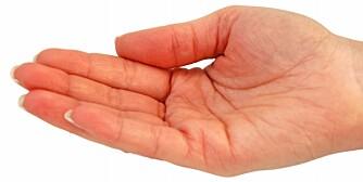 MÅL: Er det skadde området større en pasientens håndflate, bør vedkommende til lege.