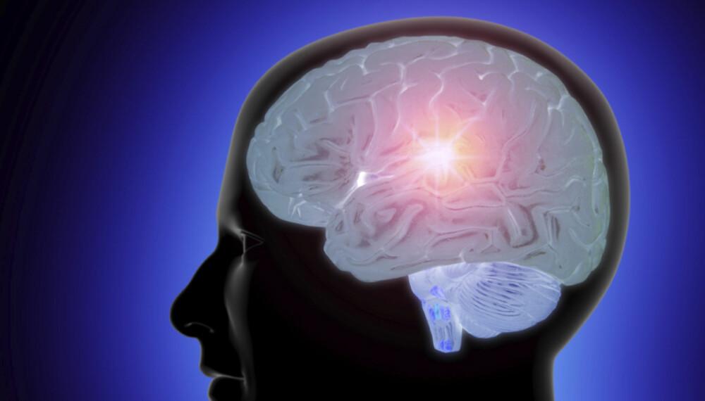 GENI? Da har du større sjanse for å bli olding, ifølge en ny undersøkelse om sammenhengen mellom intelligens og død i ung alder.