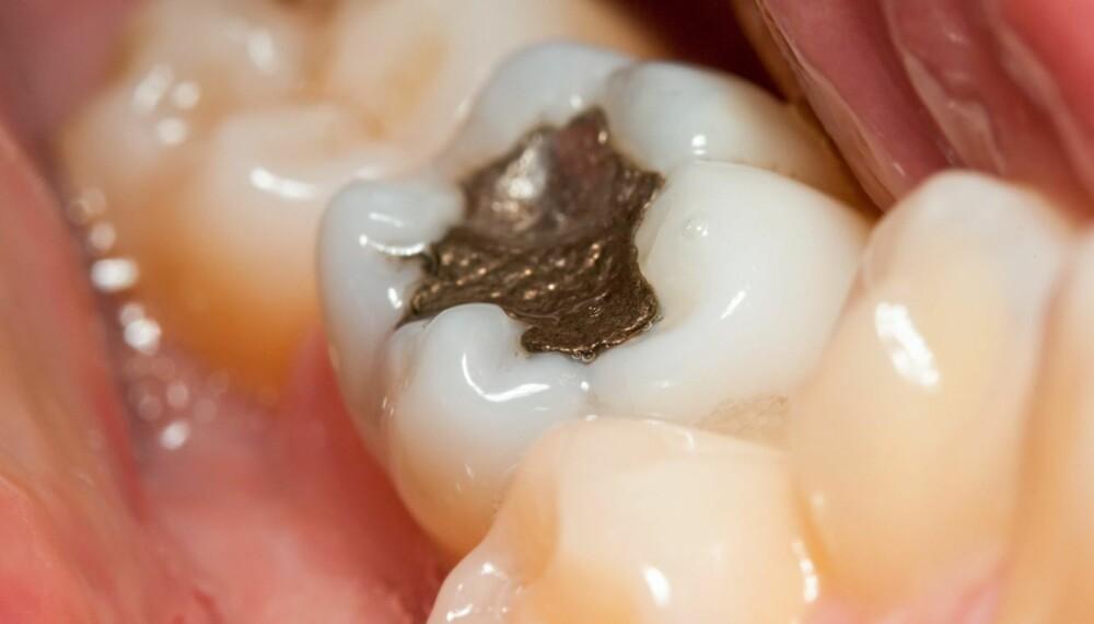 AMALGAMTENNER: Tannlegene foretrekker i utgangspunktet å unngå å legge fyllinger i tennene dine. ILLUSTRASJONSFOTO: Colourbox