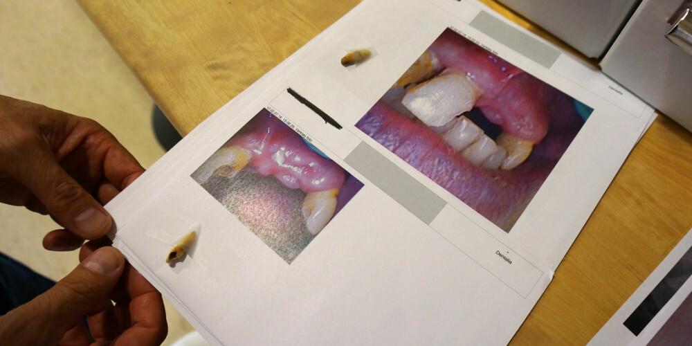 TANNLØSNING: Røyking og slurving med tannhygiene har ført til tap av flere av Svein Ivars tenner.