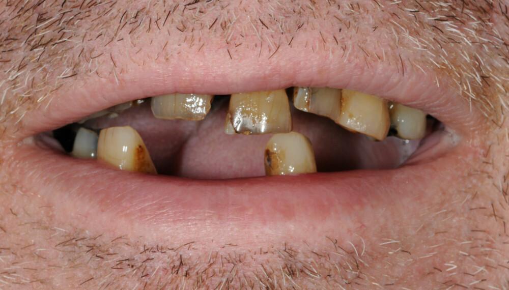 50 OM DAGEN: Svein Ivar røyket opptil 50 sigaretter hver dag. Nå har han trappet ned, men tennene må uansett trekkes.