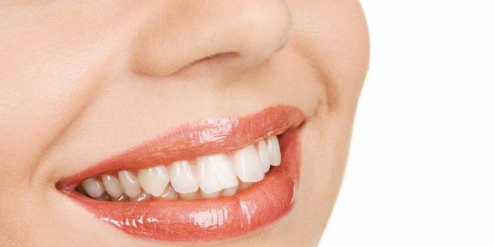FLOTTE TENNER: Din egen innsats med tannbørste, tanntråd og fluor har mye å si for tannhelsen.