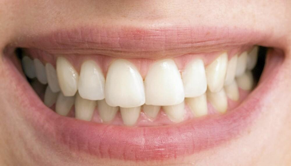 PERLERAD: Ønsket om en kritthvit perlerad fører til at mange forsøker hjemmebleking av tenner. Det kan være bedre enn å gjøre det på klinikk, mener tannlegen.