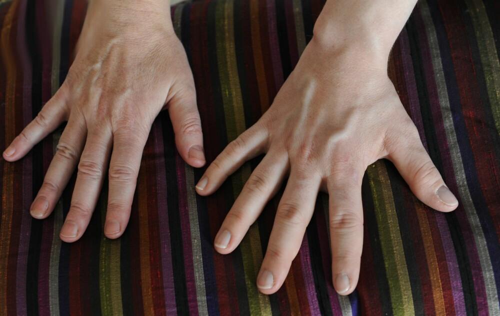 IRREVERSIBELT: Kamillas hånd sammen med journalistens. Kamillas hender er store, men også hjertet og andre organer har vokst.