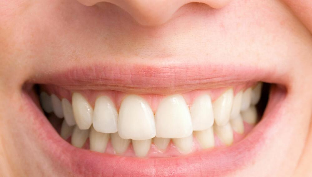 GULE TENNER: Det er stor forskjell på hvor hvite eller gule tenner vi er utstyrt med fra naturens side.  Foto: Colourbox Foto: Illustrasjonsfoto: Colourbox