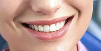 PERLERAD: Få eksperttipsene til hvordan du holder tennene dine hvite.