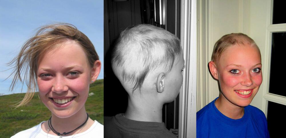 MISTET HÅRET: Oda som 12-åring, mens hun hadde hår. Før jul, da hun var 13 år, var hun i ferd med å miste alt håret.