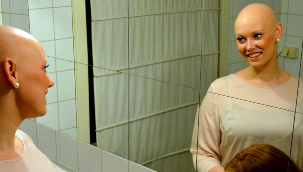 UTEN PARYKK: Oda Nybakken Molstad (23) har sykdommen Alopecia Areata som har resultert i hårtap på hele kroppen.