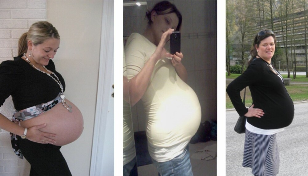 STORE MAGER: Noen gravide får større mager enn andre. Venstre: Benedicte Wolff Aasen, dagen før hun tok keisersnitt, tre uker før termin. Babyen var 3440 g. Midten: Lisa Høyer, fem dager før termin. Jenta var 3700 g. Høyre: Anita Holme dagen før fødsel. Gutten var  4900 gram. Foto: Privat