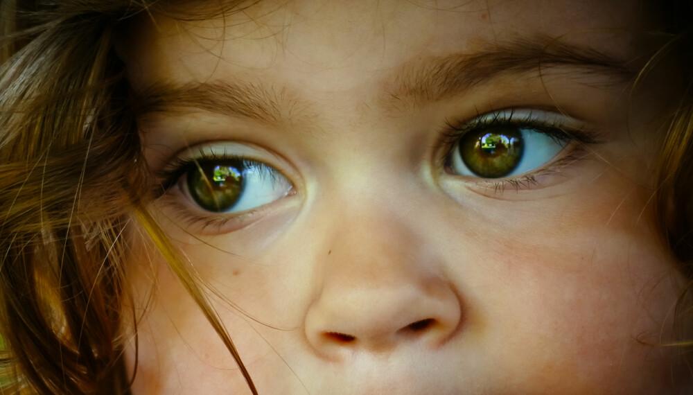 EPILEPSI HOS BARN: Med riktig behandling kan barn med epilepsi leve akkurat som andre barn. Foto: Gettyimages.