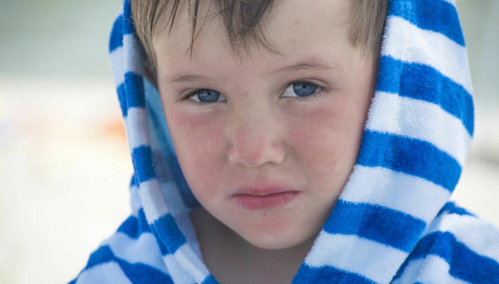 RØDE PRIKKER PÅ BARN: Røde prikker i ansiktet, på kinn eller kroppen skyldes sjelden en alvorlig sykdom. Det finnes imidlertid flere potensielle årsaker til de røde prikkene. Foto: Gettyimages.
