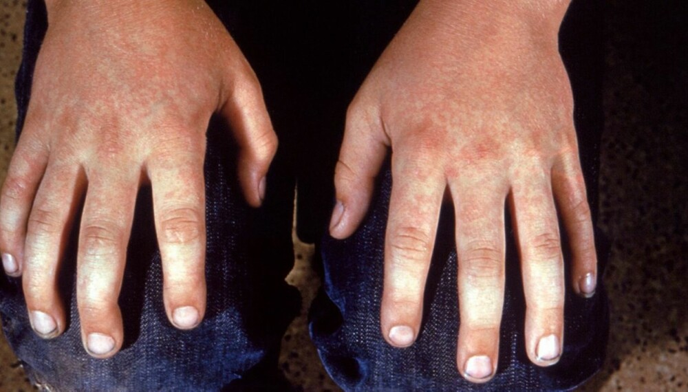 DEN FEMTE BARNESYKDOM: Også store barn kan få den femte barnesykdom. På hendene til denne ungdommen vises det røde, marmorerte utslettet som er typisk for denne sykdommen.