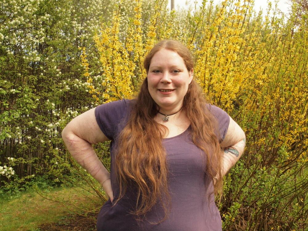 OVERLEVDE SELVMORDSFORSØK: Helene Ferguson (30) har overlevd flere selvmordsforsøk. Hun er glad hun endelig fikk hjelp til å takle livet.