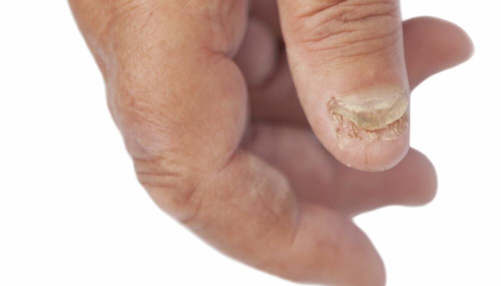 PASS PÅ: Neglene kan fortelle deg mye om helsetilstanden din.