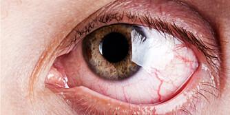 FØLG MED PÅØ ØYNENE: Øynene kan i mange tilfeller speile mye av en persons allmenntilstand. FOTO: COLOURBOX