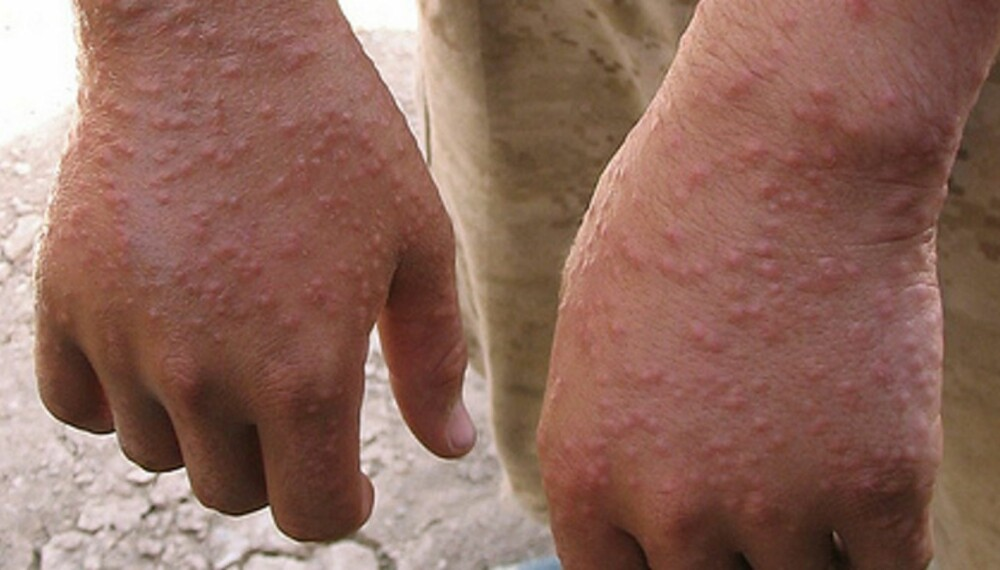 UTSLETT: En soldat viser frem utslett etter sandflue-bitt.