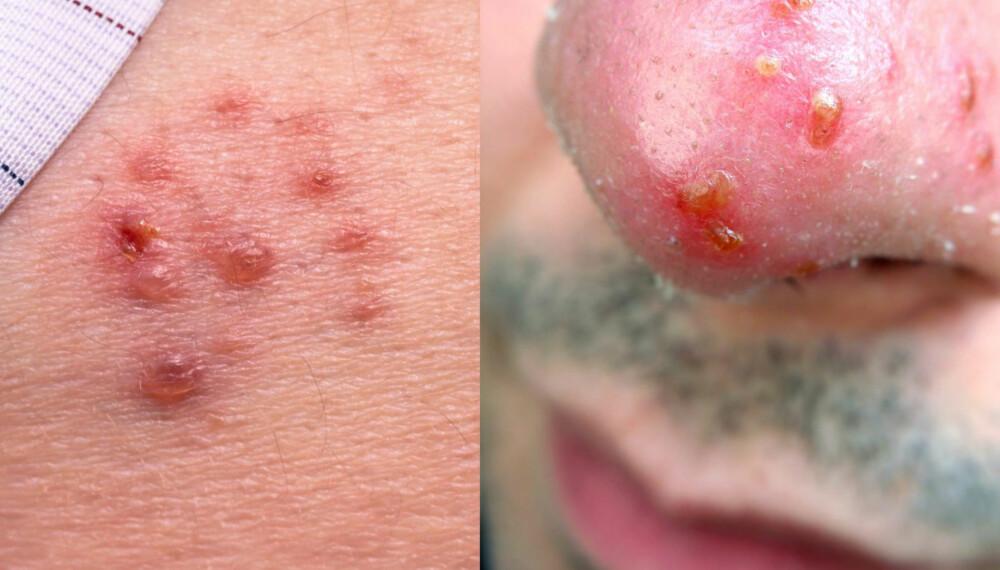 BLEMMER: Herpes gir væskefylte blemmer og sår på hud eller kjønnsorganer.